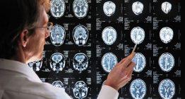 Treinando o cérebro